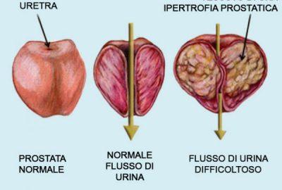 sintomi del flusso di urina prostatica
